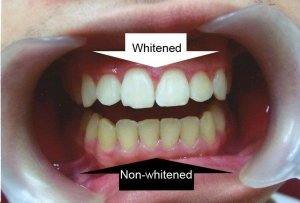 tooth whitening wodonga